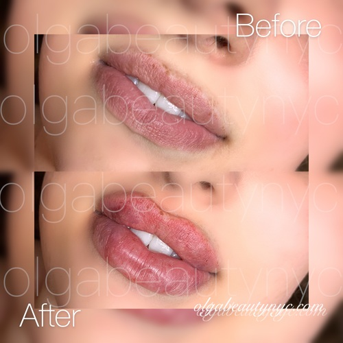 Hyaluronic acid used for lip augmentation can not only make the lips voluminous and plump but also hydrate and refresh