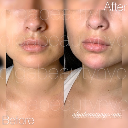 1 ML CHIN AUGMENTATION