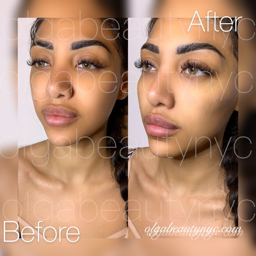 Subtle and natural quick cheekbone enhancement with just 1 ML Restylane LYFT