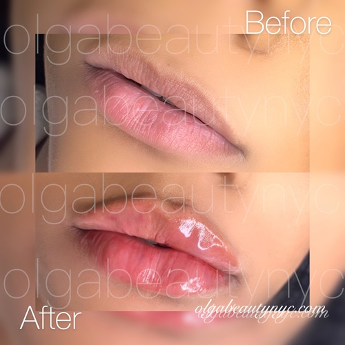 Perfectly flat, voluminous lips - Enhanced with just 1 ML Restylane