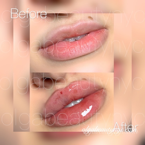 1 ML lip enhancement using Restylane